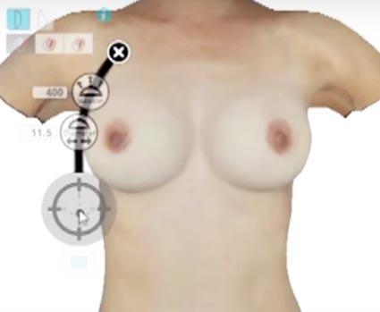 Andere Weisen, die Brust zu vergrössern