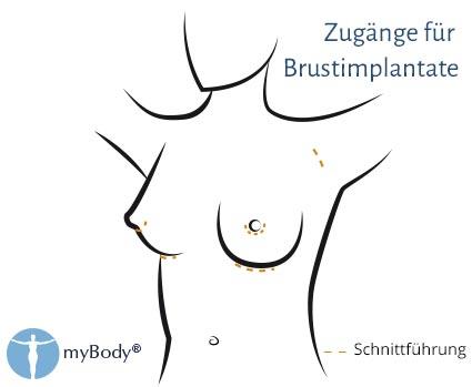 san francisco bca8e 14f95 Brust-OP: Implantate für Körbchengröße B, C oder D - Dr ...