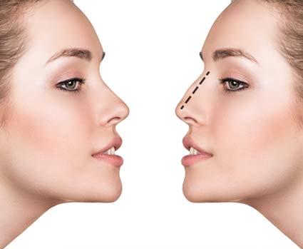 Nase operieren lassen