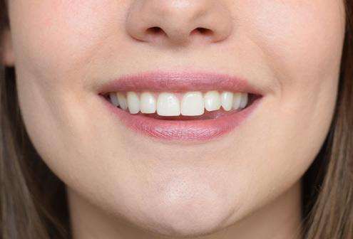 Zahnfarbe a2