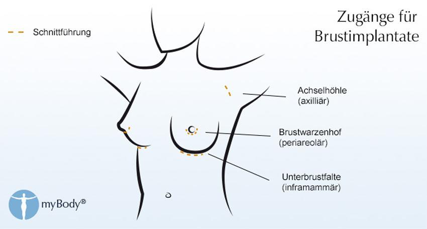 Bild des Mannes mit Brustimplantat