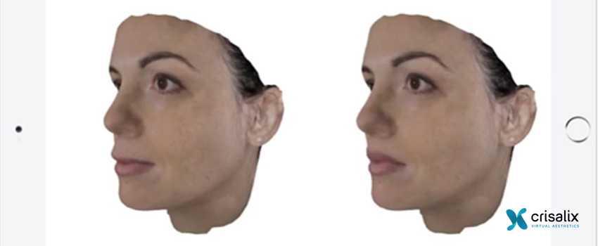 Erfahrungen männer nasen op Nasenkorrektur Vorher
