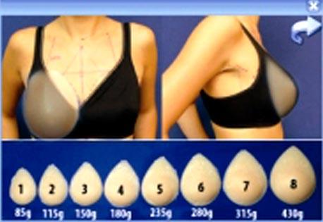 anatomische brustimplantate vorher nachher fotos
