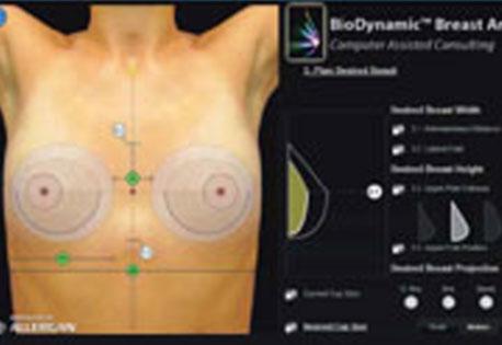 Die Kliniken spb nach der Erhöhung der Brust und dem Preis