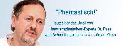 dr pees à ber klopp s haartransplantation phantastisch