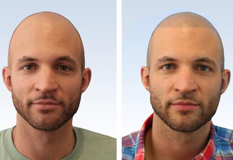 Gesichts op männer