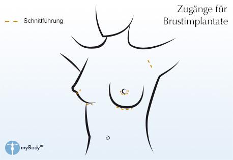 Wie die Brust ohne Operation der Tablette zu vergrössern