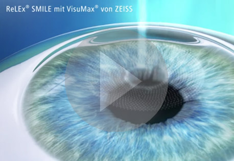 Video ReLEx Smile Augenlasern