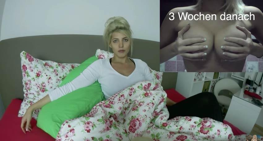 Brustvergrößerung nach 5 wochen Nässende Narbe